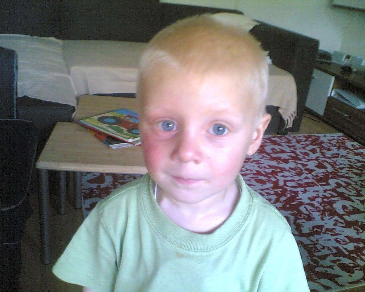TOBY during chemotherapy when he was two years old.